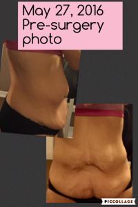 Pre-Surgery Photo